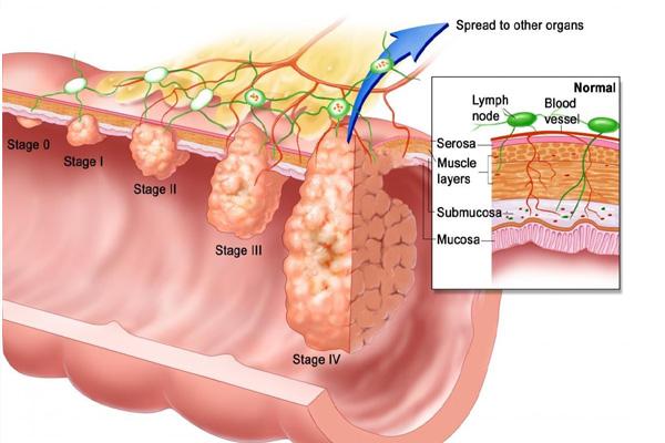 condyloma diagnózis